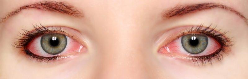 Покраснело глазное яблоко и болит