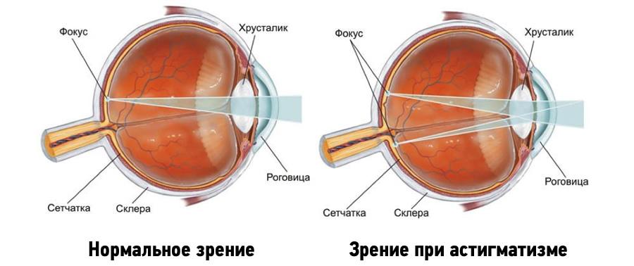 Астигматизм глаз: причины, симптомы, диагностика, лечение и ...