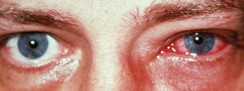 Герпетический кератит - Болезни офтальмологии