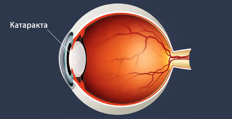 Симптомы катаракты - первые признаки и симптомы катаракты глаза