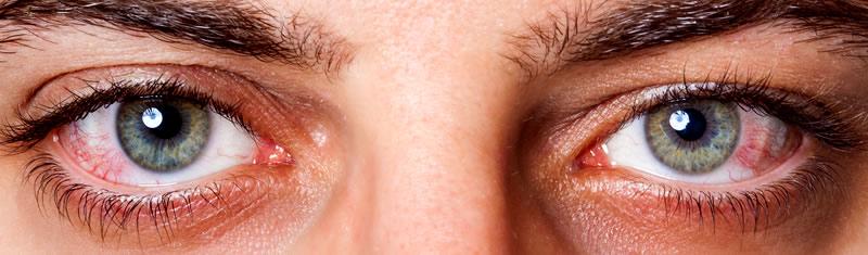 Как вылечить хронический конъюнктивит у взрослых?