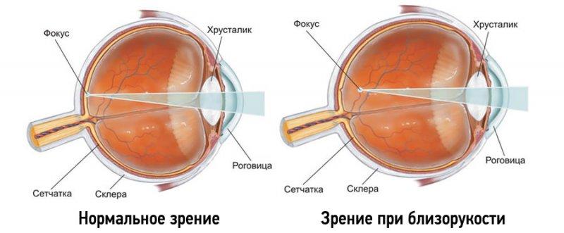 Глазные болезни при близорукости thumbnail
