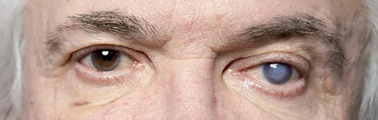глаукома передается по наследству каким признаком