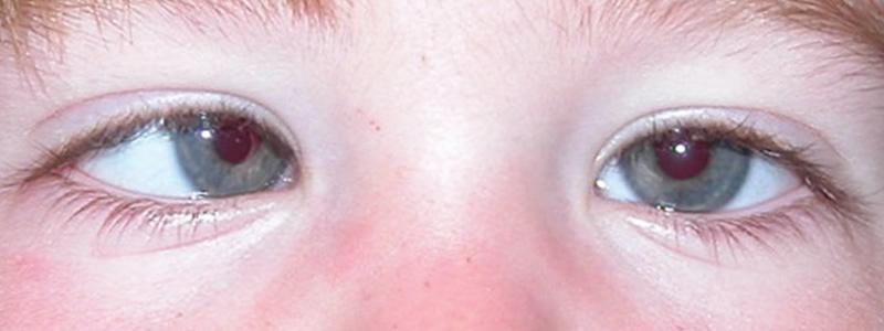 Амблиопия глаза