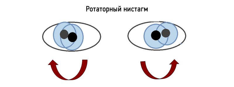 Нистагм глаз