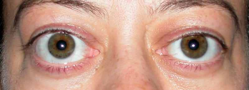 Расширение глазной щели