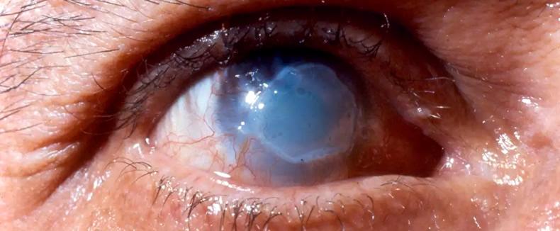 Лечение ожога роговицы глаза