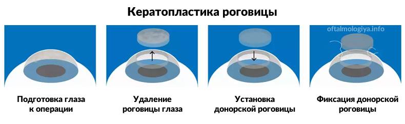 Кератопластика роговицы