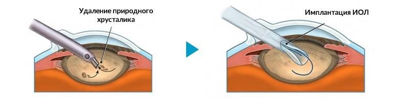 Интраокулярные линзы (ИОЛ)