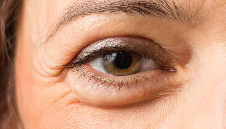 Как убрать мешки под глазами с помощью специальных упражнений