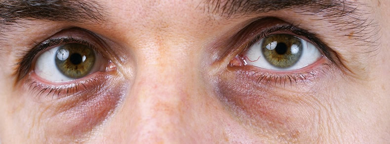 Синяки под глазами – причины и лечение , как убрать в домашних условиях
