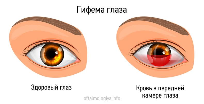 Гифема глаза
