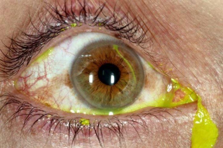 Как вылечить эрозию роговицы глаза thumbnail