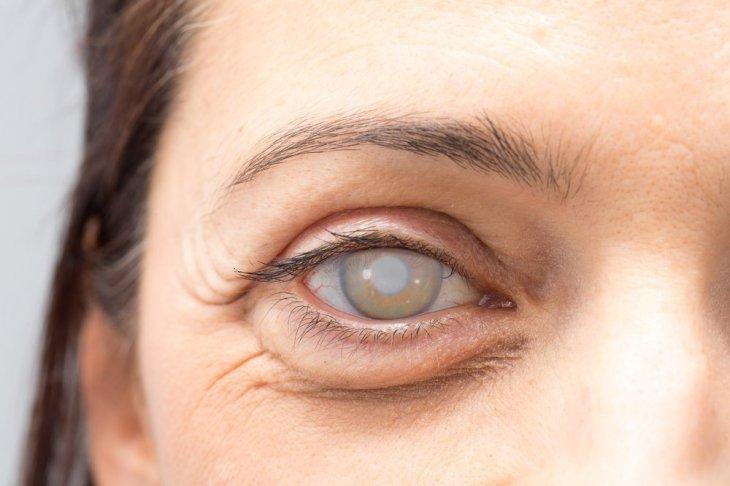 Глазные капли от катаракты